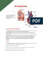 Cardiopatía Isquemica