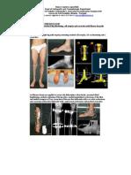 Simultaneous Correction of Leg Shortening, Calf Atrophy and Cavus Foot With Ilizarov for Polio Sequel.   Nuno Craveiro Lopes