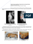 Treatment of Cominuted Acetabular Fractures Using Ilizarov Ligamentotaxis and Minimal Fixation.   Nuno Craveiro Lopes