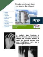 Fixação com fios v/s placanas fraturasdas falanges. João Mota da Costa