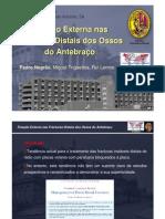 Fixação Externa nas Fracturas Distais dos Ossos do Antebraço.  Pedro Negrão , Miguel Trigueiros, Rui Lemos
