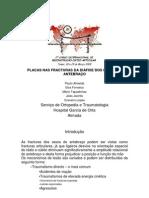Utilização de Placas no Tratamento das Fracturas dos Óssos do Antebraço no Adulto. Paulo Almeida, Elsa Fonseca, Mário Tapadinhas, João Jacinto, Craveiro Lopes