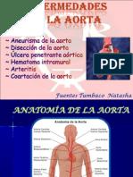 Enferm Aorta