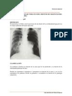 Drenaje pleural-neumotorax