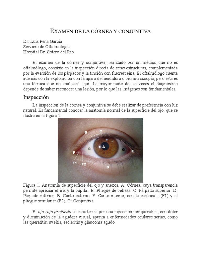 Examen de La Cornea y Conguntiva