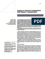 Imaging of Vascular Complications