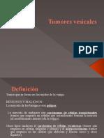 Tumor Vejiga