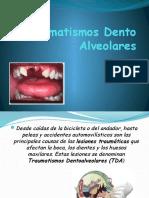 Traumatismo_Dento_Alveolar