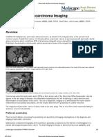 Pancreatic Adenocarcinoma Imaging
