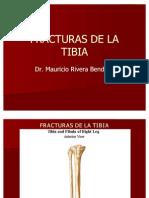 10 - Fracturas de Tibia