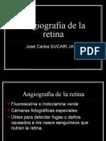 Angiografia de La Retina