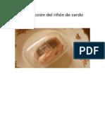 Disección del riñón de cerdo