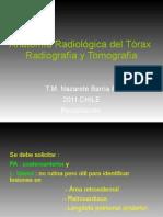 Anatomia radiológica de tórax Radiografía y tomografía 2011 para la comunidad