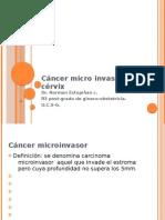 Cancer Microinvasor de Cervix