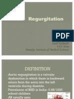 Aortic Regurgitation Ppt