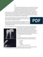 Conexin Entre Diente e Implantes