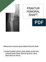 Fraktur Femoral Shaft