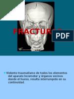 fracturas de mandibula