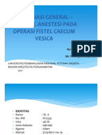 epidural anestesi