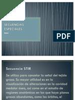 Secuencias IR