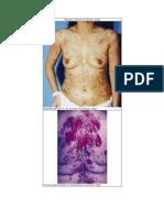 Imágenes clínicas de pénfigo vulgar