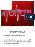 Dysrythmias Report