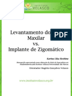 Levantamento do Seio Maxilar versus Implante de Zigomático