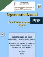 Caso Clinico de to Dental-Blanquemiento Dental