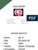 Chronic Rhino Sinusitis With Suspect Ion Nasal Polyps New