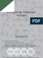 Infecciones_Orales_por_hongos_-_Dra._Maria_Paz_Contzen