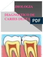 La Radiologia en El Diagnostico de Caries Dental