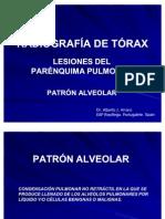 RADIOGRAFÍA DE TÓRAX. PATRONES RADIOLÓGICOS. PATRÓN ALVEOLAR