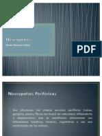 Neuropatías