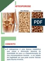 OSTEOPOROSE Trabalho Slide