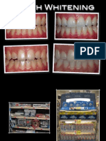 02 01 11 - Tooth Whitening