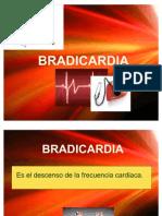 bradicardia