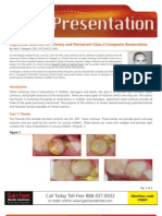 Segmental Matrices for Primary and Permanent Class II Composite Restorations