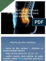 Hernia de Disc Lombara