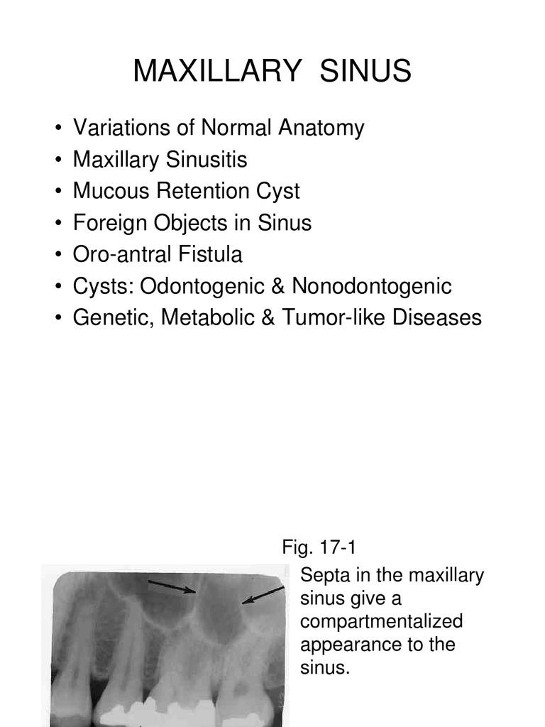 Chapter 17 Maxillary Sinus.slides   Mucus   Medical Specialties