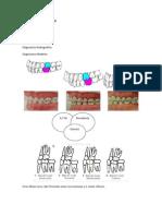 Aparatología en Ortodoncia