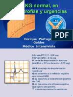 EKG3 Normal, Hipertrofias y Urgencias