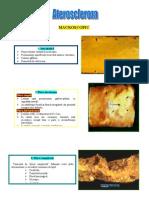 ateroscleroza 2