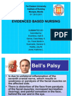 Bell's Palsy Ebn