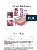 Esophageal and Gastric Varices