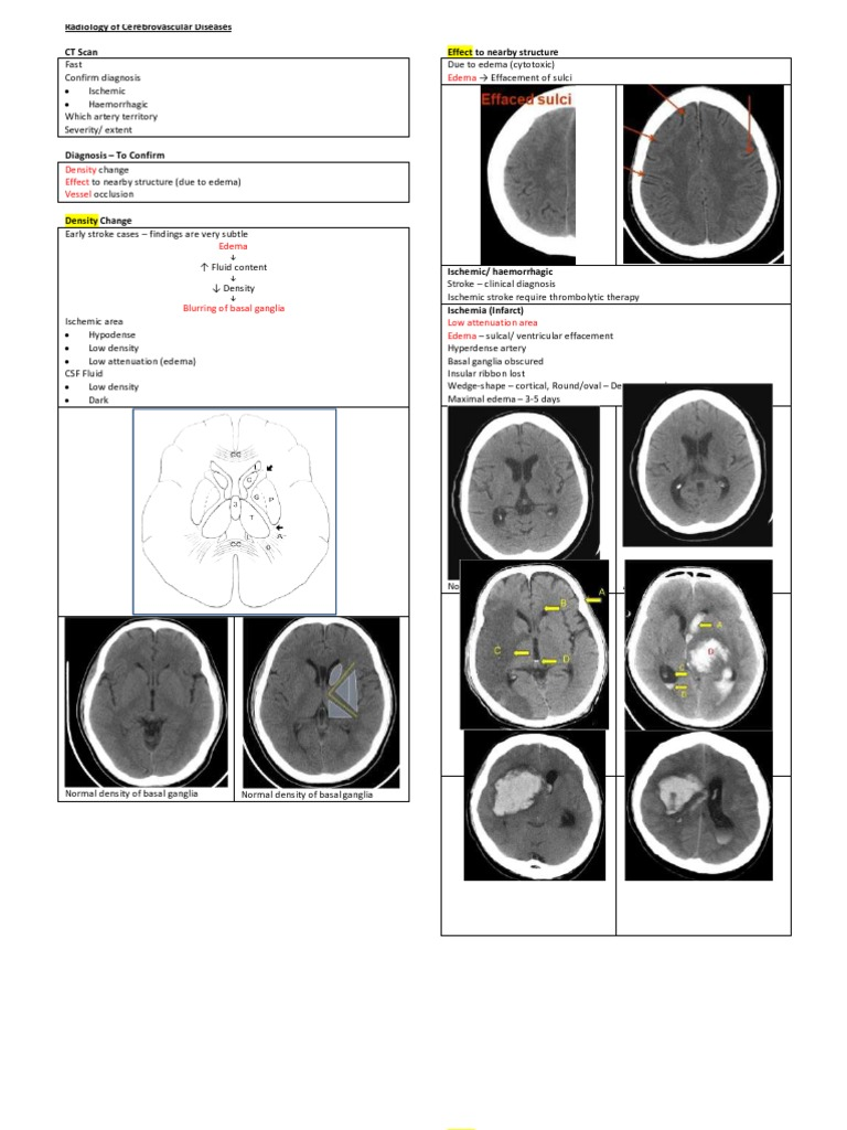 Radiology of Cerebrovascular Diseases