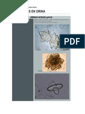 cristales en orina acida imagenes