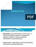 2. STOMATITIS