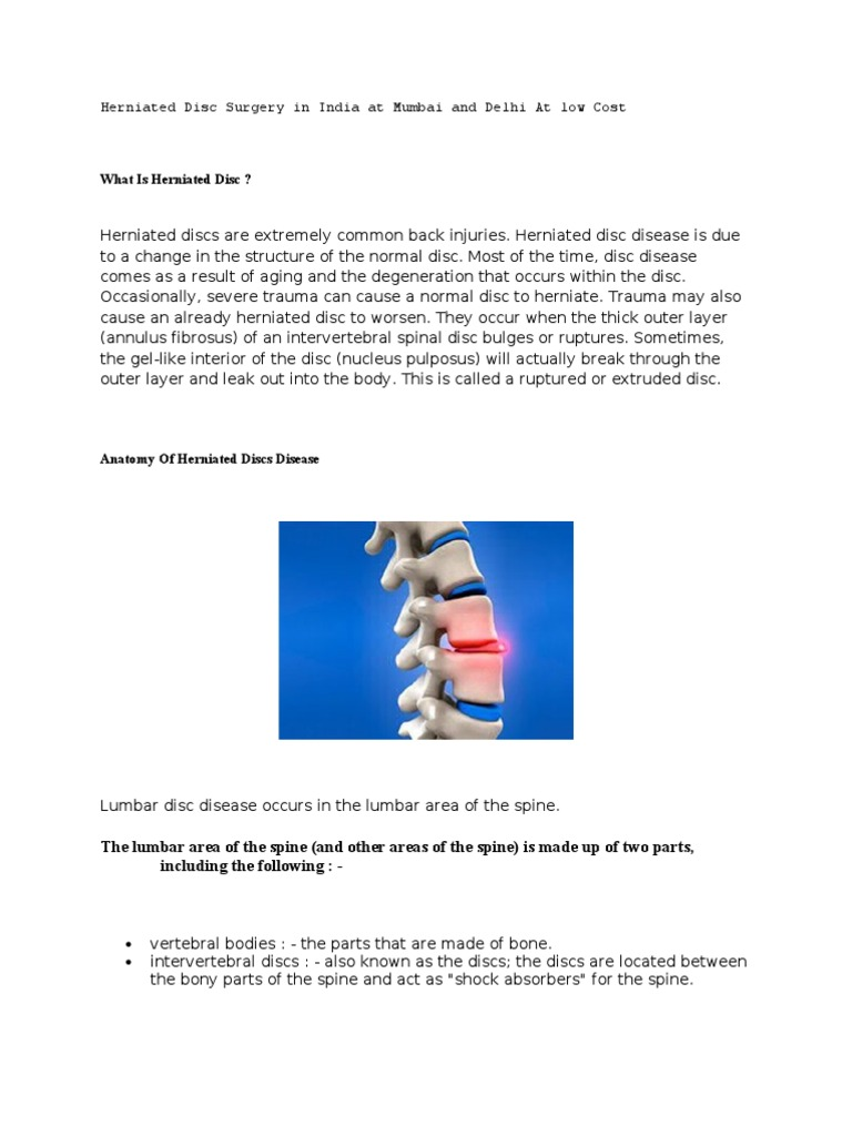 Herniated Disc Surgery: Cost and What to Expect