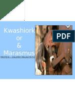 PPP - Kwashiorkor & Marasmus