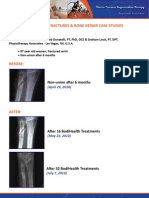 Non Union Fractures Bone Repair Case Studies
